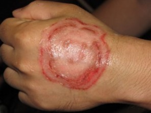 Are There Home Remedies for Ringworm That Work Ringworm on hand