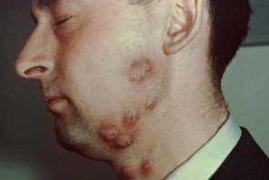 Can I Tell if I have Ringworm from Looking at Ringworm Pictures facial ringworm