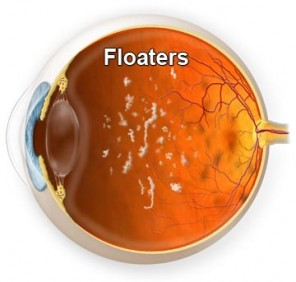 Ever_Have_Floaters_in_the_Eye