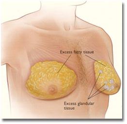 Gynecomastia_Surgery_Cost