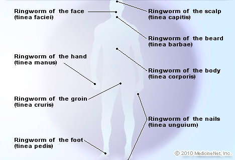 Bleach ringworm cure