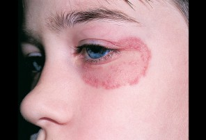 Home Remedies for How to Treat Ringworm facial ringworm