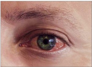 How Long is Pink Eye Contagious infected eye