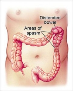 Irritable Bowel Syndrome Diet diagraM OF INTESTINES
