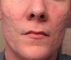 Is Acne Scar Removal Possible rolling scars