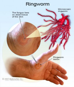 Is There A Real Ringworm Cure illustration