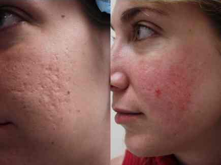 acne scar treatment works scars removal treatments pimples remedies