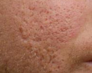 Is There and Acne Scar Treatment That Works acne scars