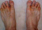 My Feet Are Starting To Look Like Those Athletes Foot Pictures bad athletes foot