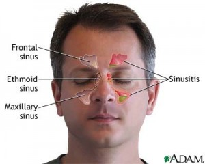 sinus chart