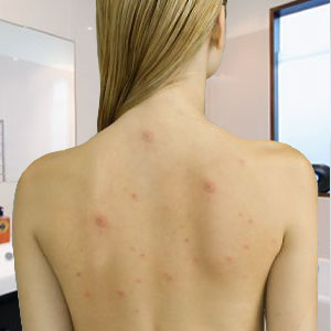 What_Causes_Back_Acne_and_How_Can_You_Get_Rid_of_It woman with back acne