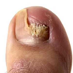 What Exactly is Toe Fungus nail partially gone