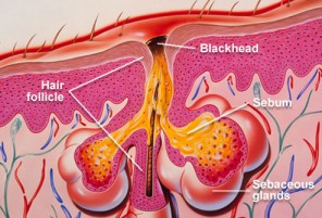 What are Some Common Home Remedies for Acne diagram of blackhead