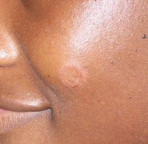 What is the Fastest Ring Worm Treatment facial ringworm