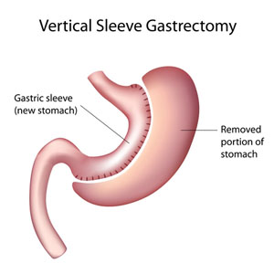 gastric sleeve surgery diagram