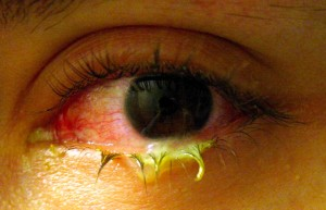 Pink Eye Pictures infected eye