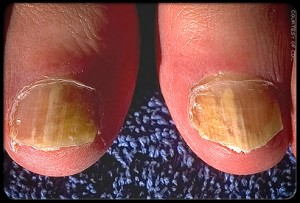 Home Remedies for How to Treat Ringworm under toenails