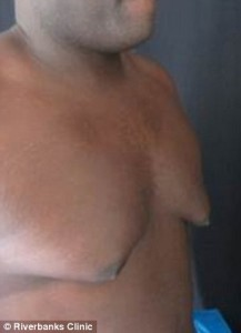 How_Can_I_Get_Rid_of_Man_Boobs2