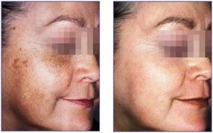 How To Get Rid Of Dark Circles hydroquinone results