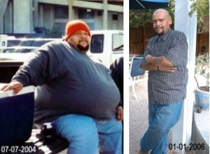 Should I Have Weight Loss Surgery before and after