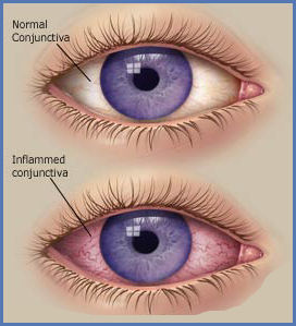 What-Are_Some_of_the_Home_Remedies_for_Pink_Eye