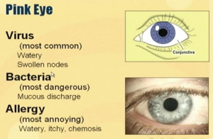What Are Some of the Home Remedies for Pink Eye chart