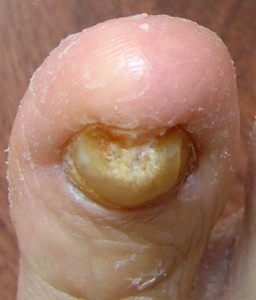 What Can We Learn From Toenail Fungus Pictures infeccted toenail