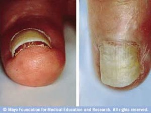 What Can We Learn From Toenail Fungus Pictures onycholysis