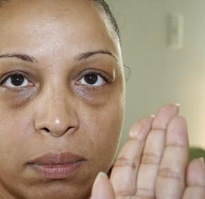 What Causes Dark Circles Under Eyes woman with dark eyes
