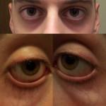 What_Causes_Dark_Circles_Under_Eyes2 man with dark circles