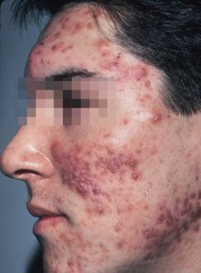 What are Some Common Home Remedies for Acne man with bad acne
