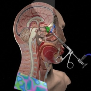 What are the Types of Sinus Surgery sinus graphic