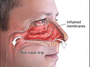Z:\6 EmbarrassingProducts.com\11 Nasal Congestion\nasal cong images\What_can_I_do_About_this_Runny_Nose illustration