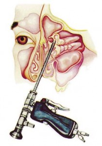 What can I do About this Runny Nose illustration of FESS