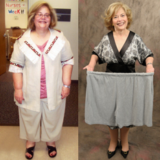 What_is_Gastric_Bypass_Surgery3
