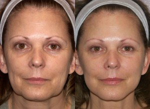 What is a Mini Face Lift before and after