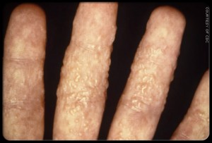 What is the Best Ringworm Treatment on the hand