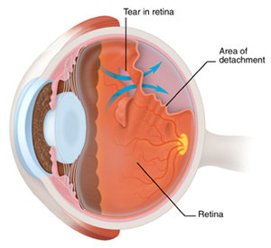 What is the Most Common Eye Floaters Treatment illustration