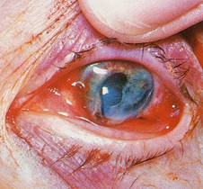 What is the Most Common Eye Floaters Treatment eye trauma