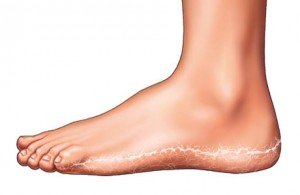 Will Antifungal Cream Take Care of Athlete's Foot diagram of foot