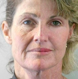 Will a Non Surgical Face Lift Work before and after