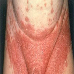 Yeast Infection in Men yest in midriff