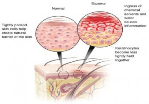 home_remedies_for_Eczema2