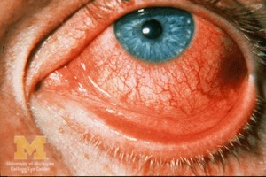 how_to_treat_pink_eye2