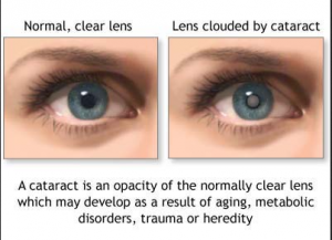 Is There an Eye Floaters Solution cataracts explained